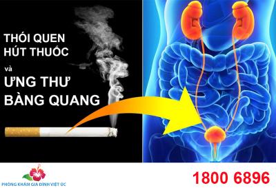 Thói quen hút thuốc và ung thư bàng quang
