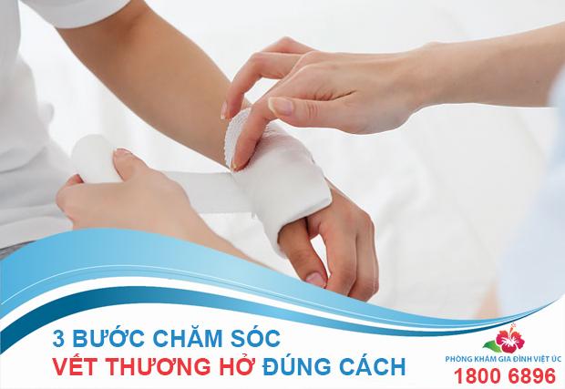 3 buoc cham soc vet thuong ho tai nha ban nen biet