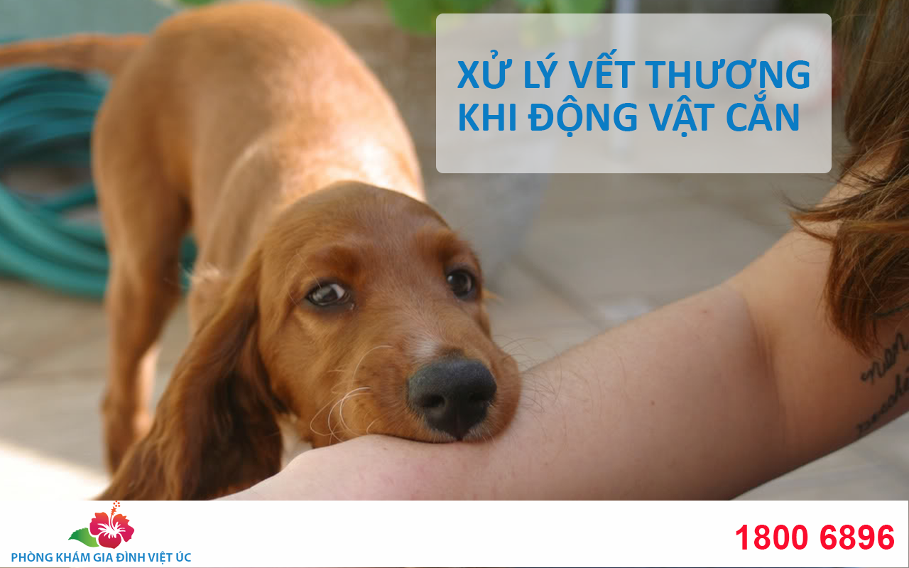 Xu-ly-vet-thuong-khi-dong-vat-can-va-cao