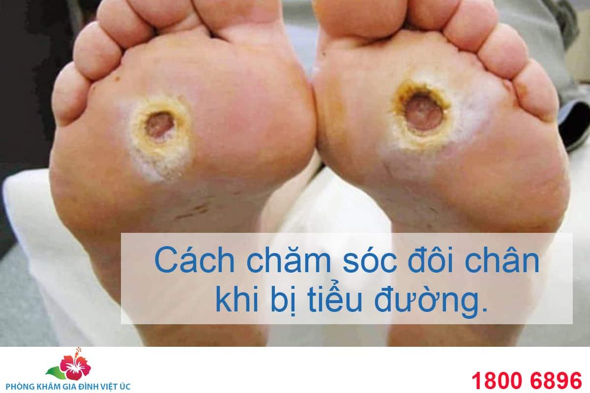 Cach-cham-soc-ban-chan-khi-bi-tieu-duong