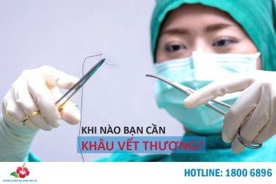 Khi-nao-ban-can-khau-vet-thuong